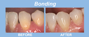 bonding, tooth replacement, tooth restoration, porcelain veneers, implants