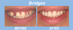 bridges, tooth replacement, tooth restoration, porcelain veneers, implants