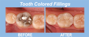 colored fillings, tooth replacement, tooth restoration, porcelain veneers, implants