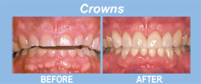 crowns, tooth replacement, tooth restoration, porcelain veneers, implants