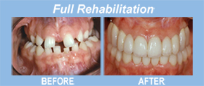 full rehab, implants, tooth replacement, tooth restoration, porcelain veneers, implants