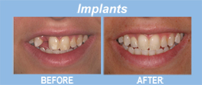 implants, tooth replacement, tooth restoration, porcelain veneers, implants