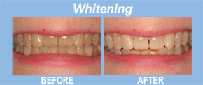 whitening, tooth replacement, tooth restoration, porcelain veneers, implants