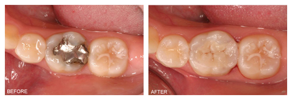tooth-colored-fillings-final1