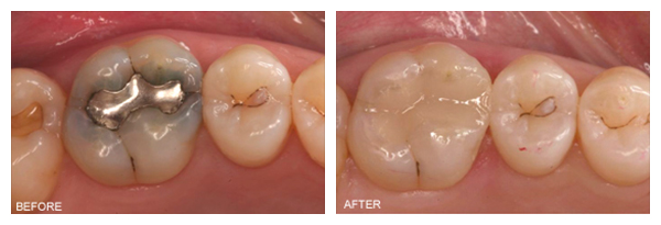 tooth-colored-fillings-final3