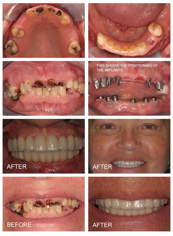 implants-9d